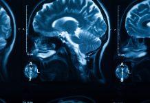 TheVRSoldier VR Brain Tumor Surgery